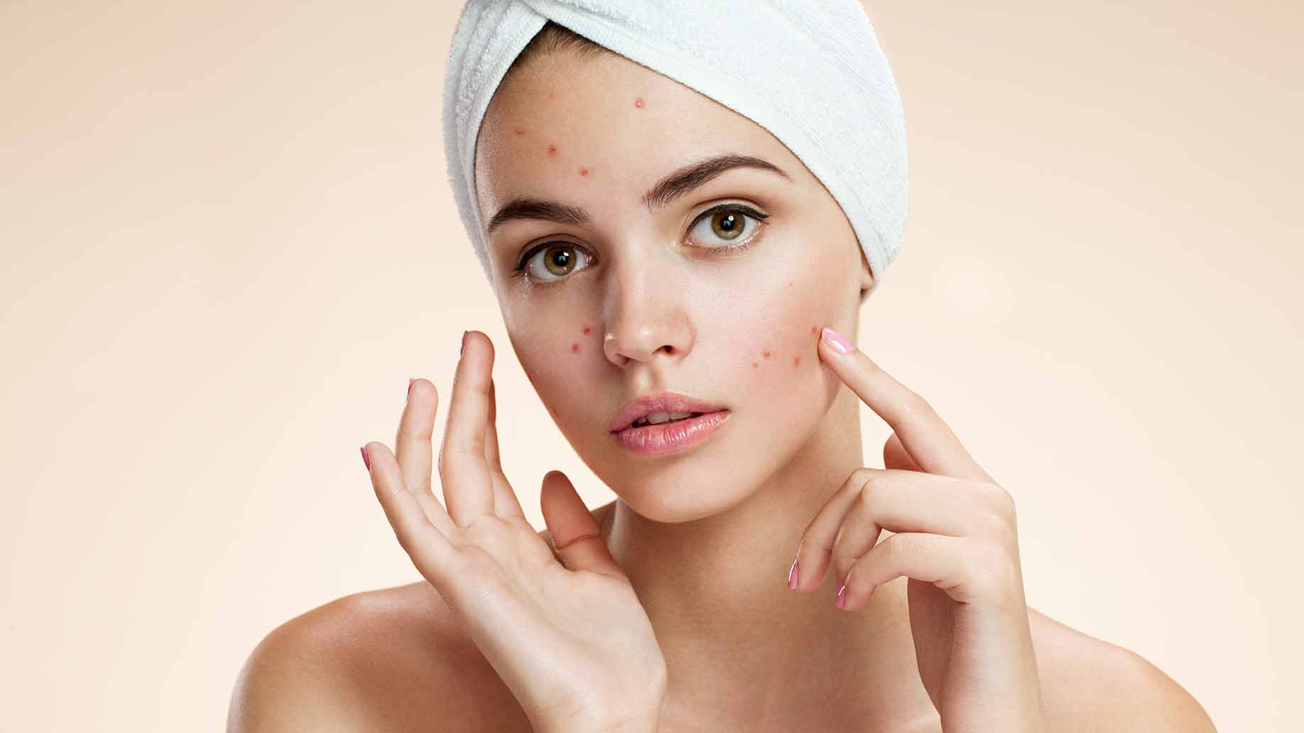 Image Why Get a Facial for Acne