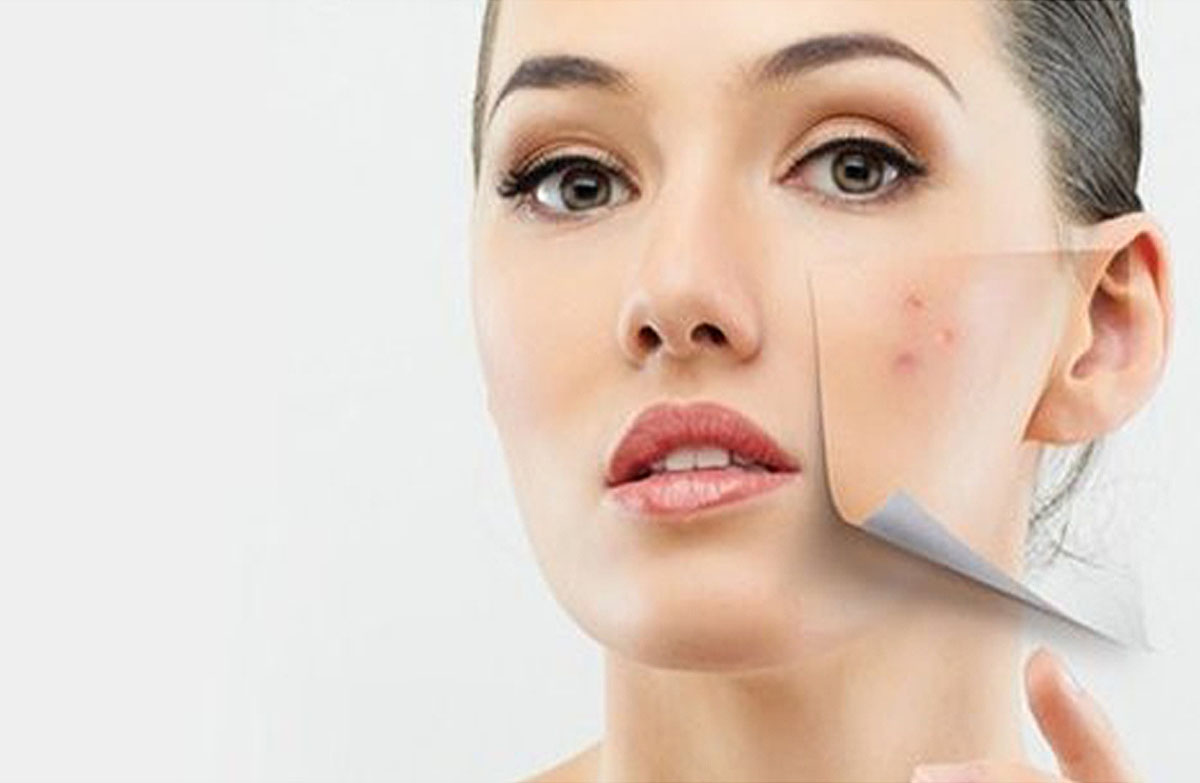 Image 10 Ways to get rid of black spots on the face naturally in a short time